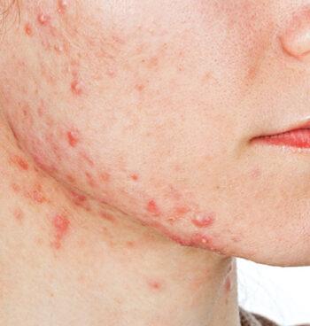 acne-laser-treatment