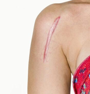 laser-scar-removal