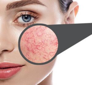 laser-vein-removal