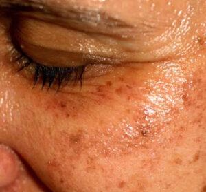 pigment-laser-treatment
