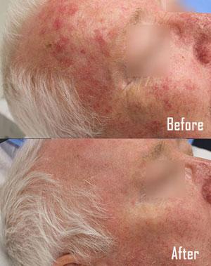 Sun-Damaged-Skin-Treatment-300x379
